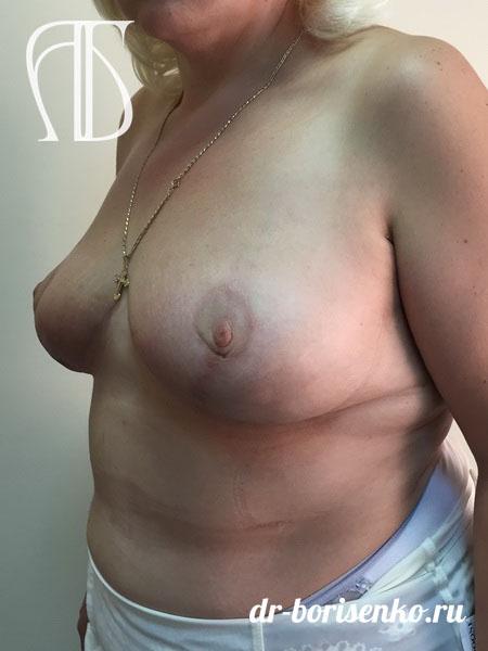 редукционная маммопластика фото после
