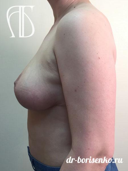уменьшение грудных желез фото после
