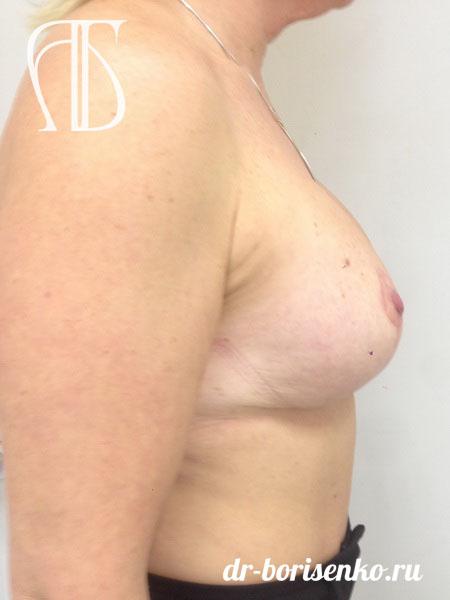операция по подтяжке груди после