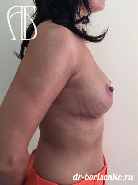 клиника подтяжка груди после