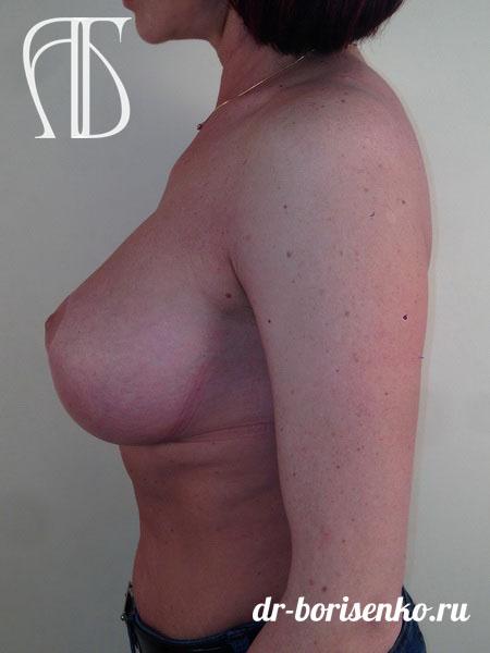 подтяжка груди с вертикальным рубцом после