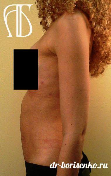 Абдоминопластика живота операция после