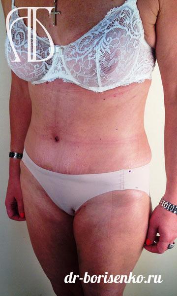 абдоминопластика после родов