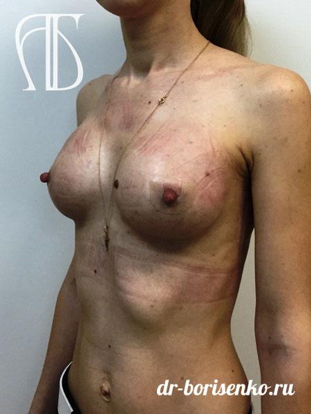 сделать увеличение груди после