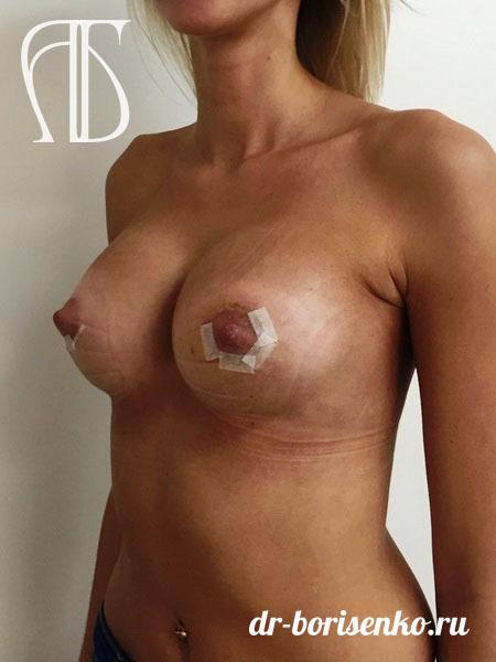 увеличение женской груди после
