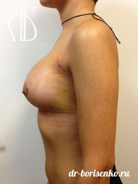 увеличение груди имплантанты после