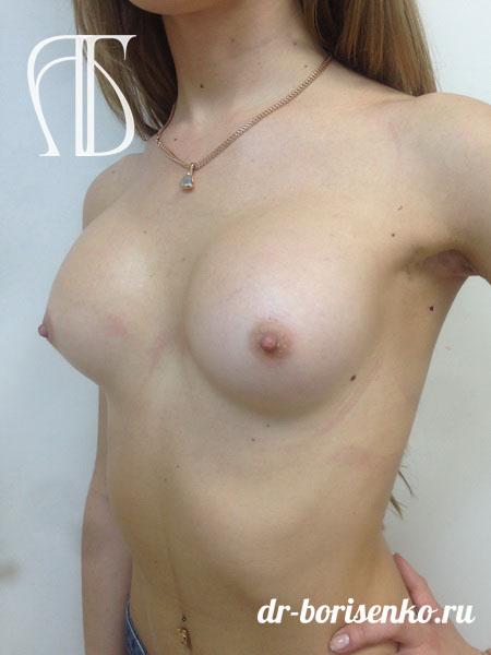 увеличение груди имплантами фото после