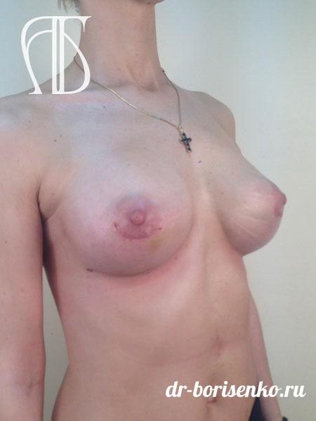 увеличение груди после родов после