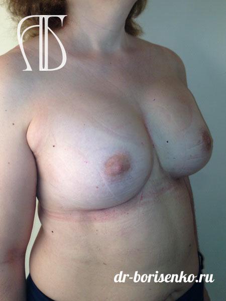 увеличение груди большого размера после
