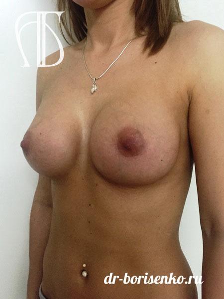 увеличение груди с помощью имплантов после