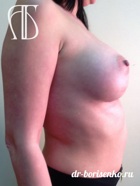 пластическая клиника увеличение груди после
