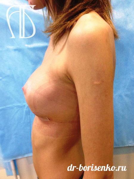 величение груди с нулевого размера после
