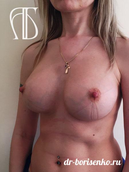 увеличение груди купон после