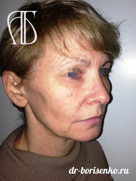 Хирургическая подтяжка лица до