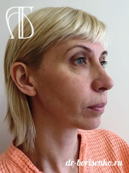 Эстетическая пластика лица до