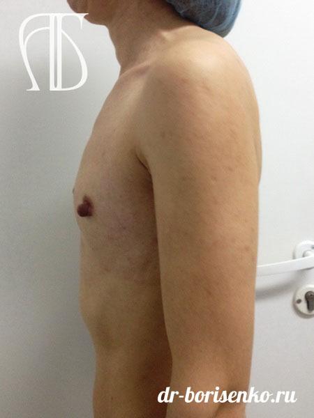 увеличение груди в москве до