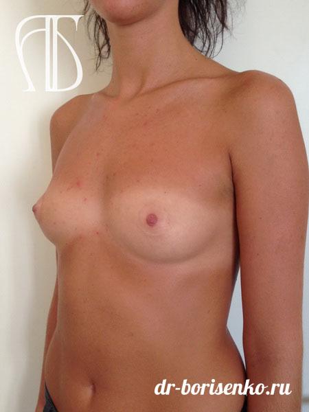увеличение груди под грудью до