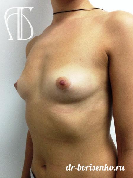сделать операцию по увеличению груди до