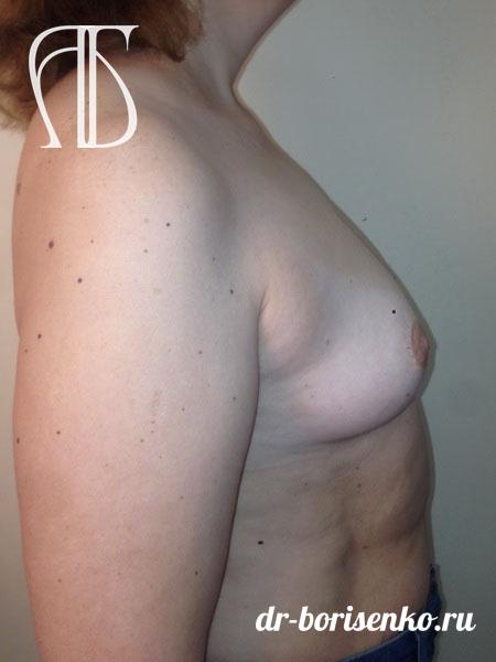 увеличение груди 1 2 размера до