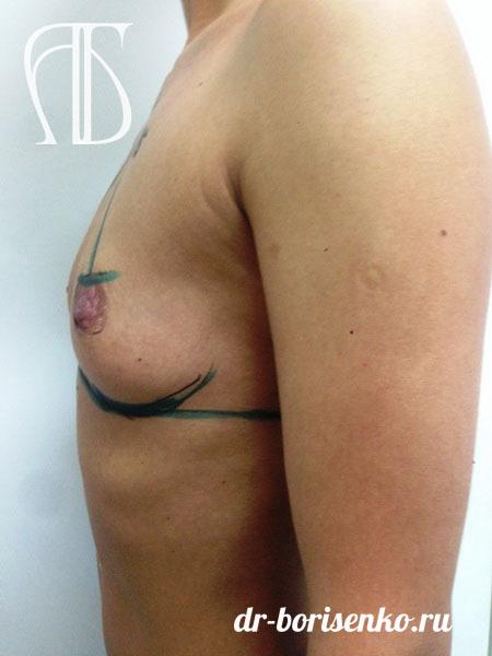 увеличение груди круглыми имплантами фото до