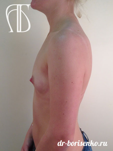 увеличение груди без швов до