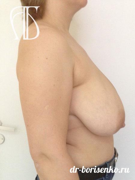 операция по уменьшению грудных желез до