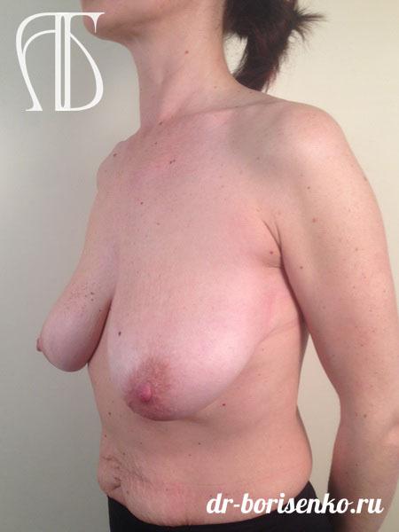 мастопексия до