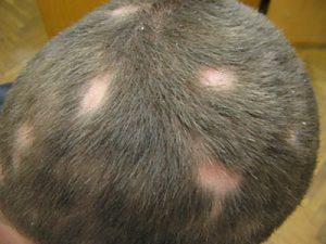 Алопеция волосистой части головы