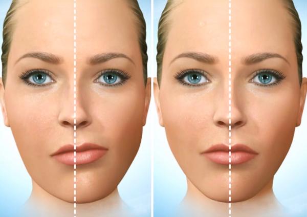 коррекция асимметрии лица