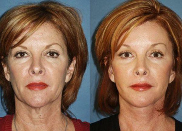 коррекция формы лицевого овала