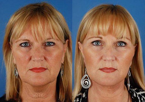 очертания лица - до и после