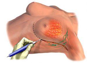 Пластика при раке молочной железы