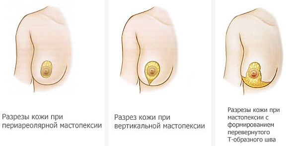 Силиконовая грудь в аптеке