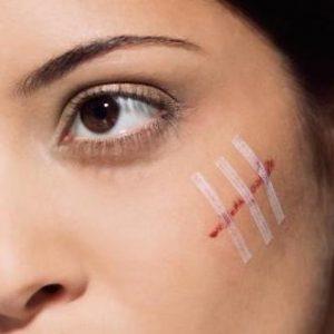 пластика шрамов на лице