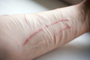 Шрамы от суицида